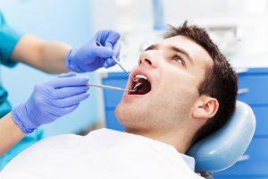 Como balnquear los dientes