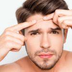 acne dieta cetogenica